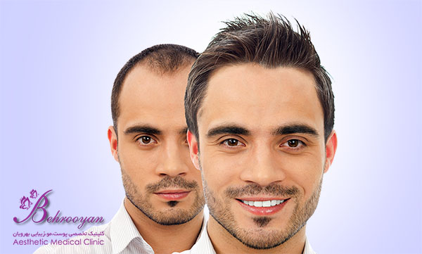 کاشت مو در کلینیک بهرویان